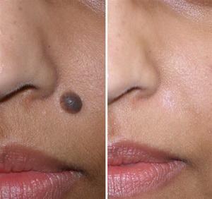Facial mole removal nhs